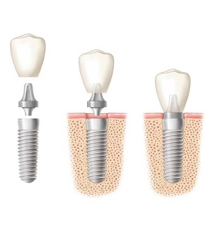 Dental implant Romania Cluj Napoca